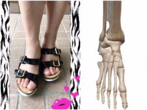 サンダルと足部